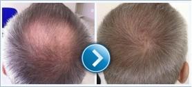 Milyen a modern Greffe de cheveux?