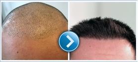 A hair transplant megelőző és követő intézkedései